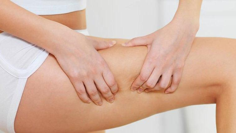 carboxytherapy body featured image