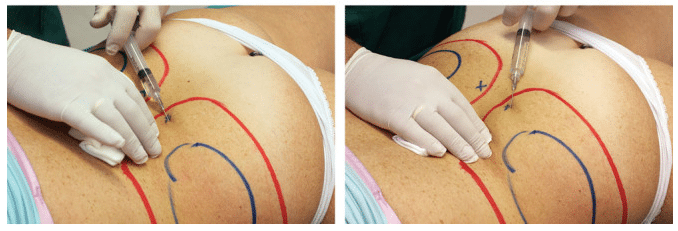 LipoLysis