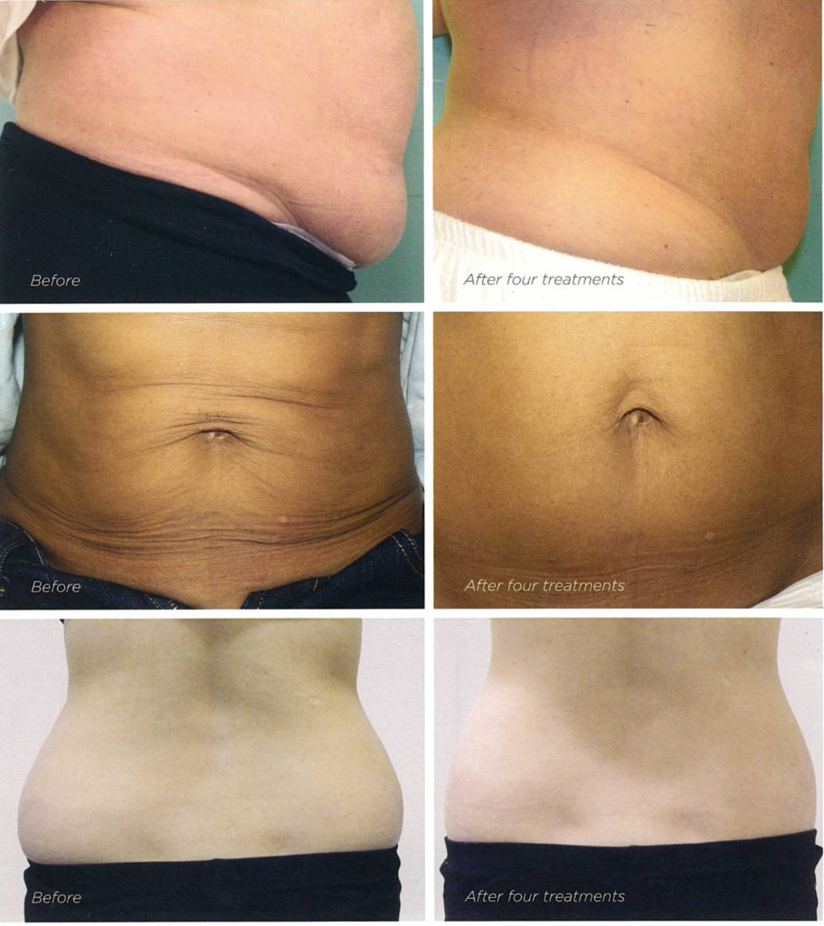 Exilis Elite - before after